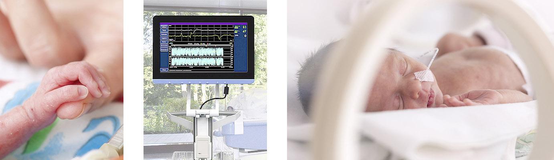 Neues AEEG-Gerät für Frühgeborene